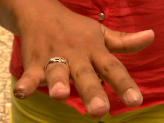 Homem arranca o dedo da mulher com um facão por ciúmes