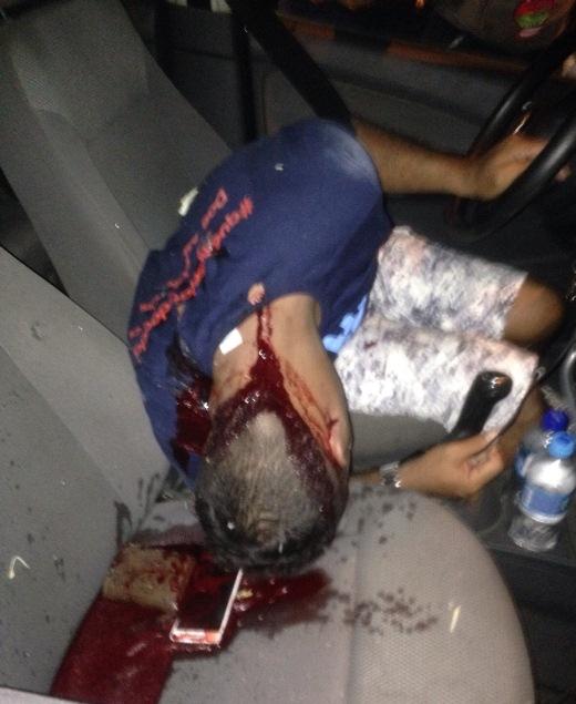 Jovem é assassinado dentro de Gol na Rua do Aeroporto