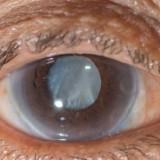 Novo colírio pode dissolver catarata sem necessidade de cirurgia