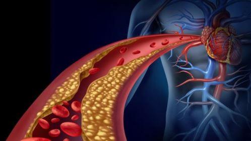 Cientistas testam vacina contra colesterol para prevenir doenças cardíacas