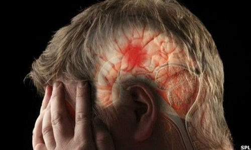Primeiros sintomas de derrame cerebral