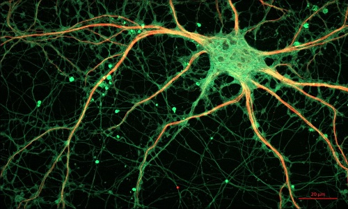 Descoberto'ciclo tóxico' que causa mortes de neurônios em doenças degenerativas
