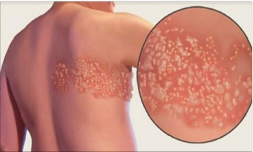 Herpes-zóster, a doença causada pelo vírus da catapora