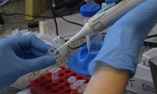 Teste detecta infecção anterior pelo vírus Zika