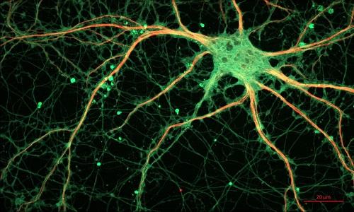 Colesterol no cérebro está ligado a surgimento da doença de Alzheimer, diz estudo