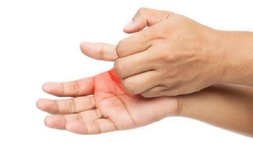 Coceira na palma da mão, você sabe o que significa?