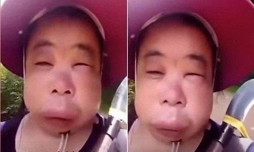 Mulher tenta tirar mel de colmeia e fica com o rosto deformado
