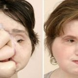 Menina que tentou suicídio é a pessoa mais jovem a passar por transplante facial