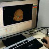 Estudo brasileiro dá aval à radiocirurgia