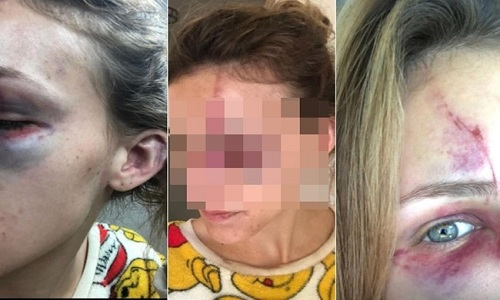 Brasileira é espancada por namorado nos EUA
