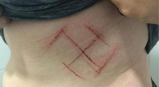 Mulher tem suástica desenhada com canivete em seu corpo