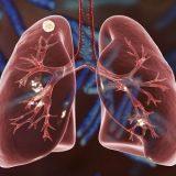 O  Bolsa Família ajuda a aumentar a taxa de cura da tuberculose nas pessoas
