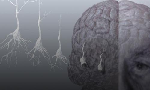 Proteína foi  liberada por exercícios que  pode combater o Alzheimer