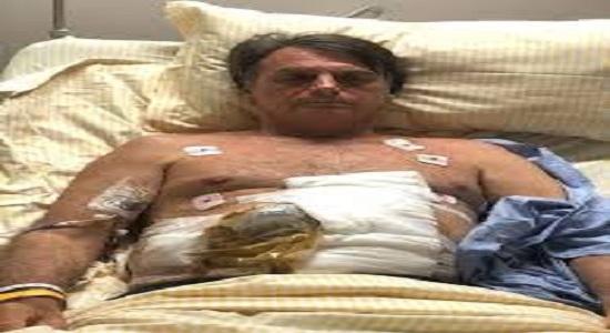 Saúde de Bolsonaro é mais grave do que dizem seus assessores