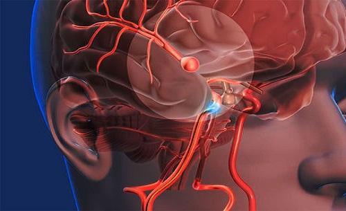 Como saber se você tem um aneurisma?
