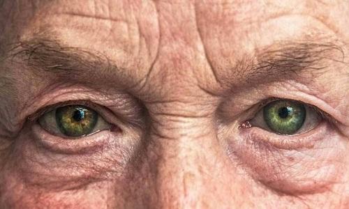 Por que pacientes na faixa dos 40 e 50 anos estão perdendo a visão para a catarata?