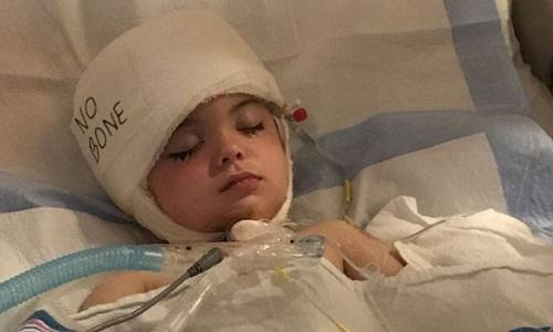 A volta à escola de Joseph – o menino que sofreu um aneurisma aos 3 anos e perdeu 40% do crânio