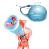 Balão intragástrico o método mais procurado do momento para emagrecer